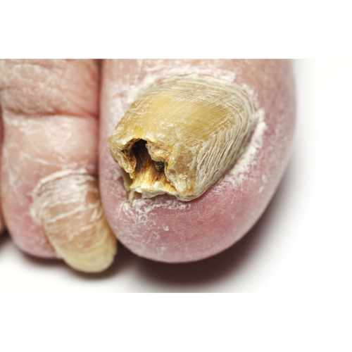 Fungal Nail Infection Blog 1