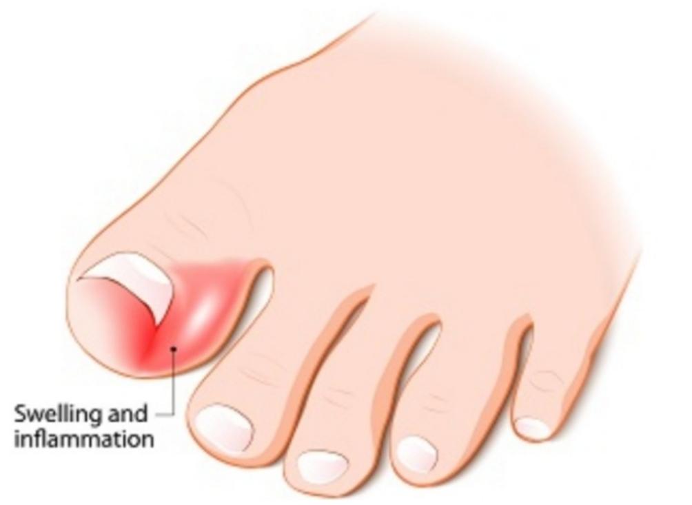 Ingrowing Toe Nail Diagram