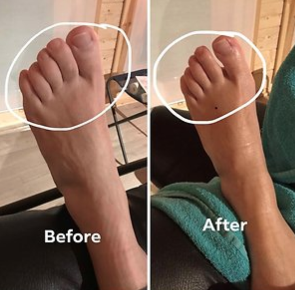 Hempstead Therapy Centre - Foot Before and After