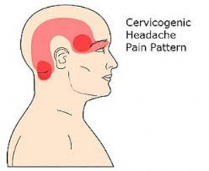 HTC Blog Cervicogenic Headaches