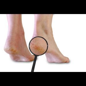 Chiropody - Cracked Heels