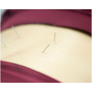 Dry Needling Image 2