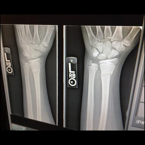 X-Rays (1)