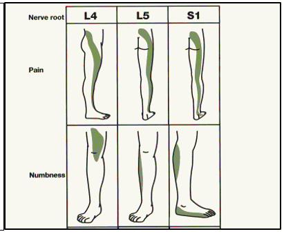 HTC - Sciatica - Legs