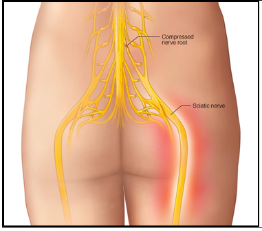 HTC - Sciatica - Sciatic nerve