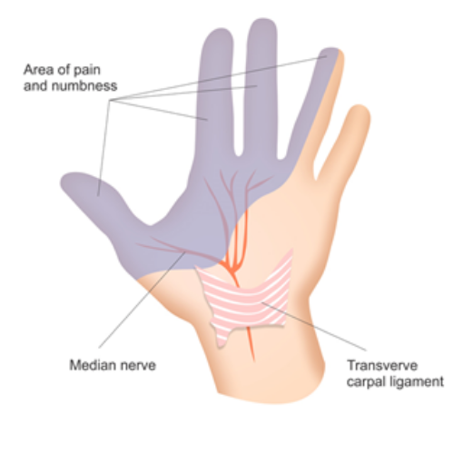 HTC Blog - CTS areas of pain