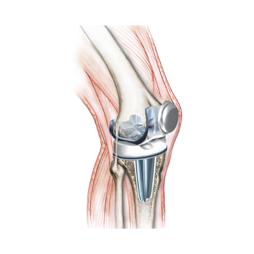 HTC Blog - Knee prosthesis