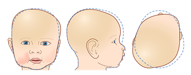 HTC - Blog - Plagiocephaly - Head Shape