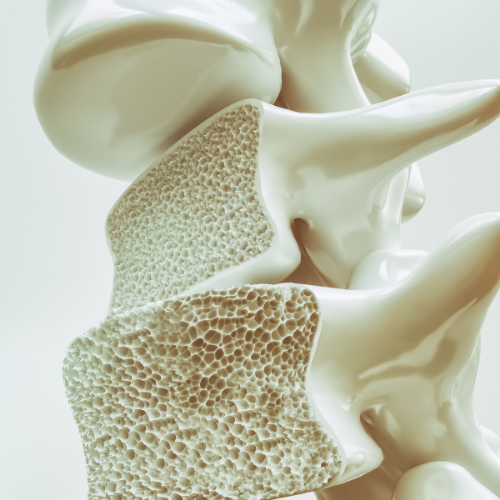 HTC Blog - Osteoporosis